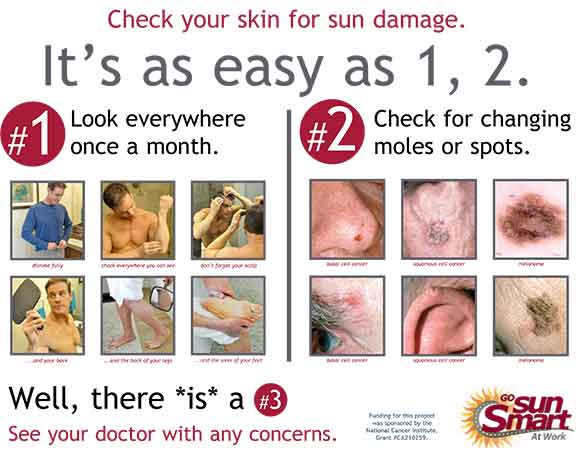 Check Your Skin for Sun Damage Poster